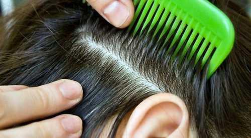 Чувствительная кожа головы — повод для обследования