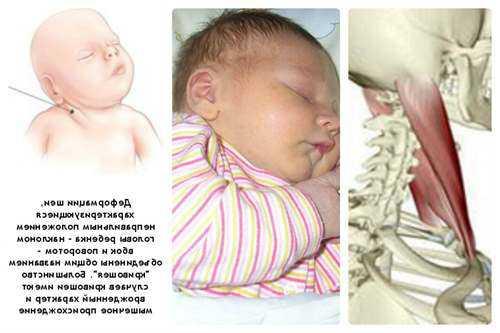 Кривошея у новорожденных