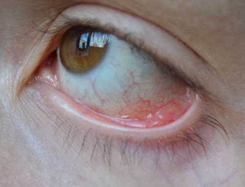 Болят веки глаз, причины, этот симптом  может