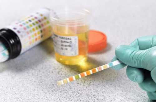 Эритроциты в моче при беременности, гематурия