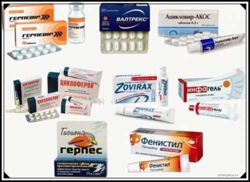 Лечение герпеса в домашних условиях: лекарства,