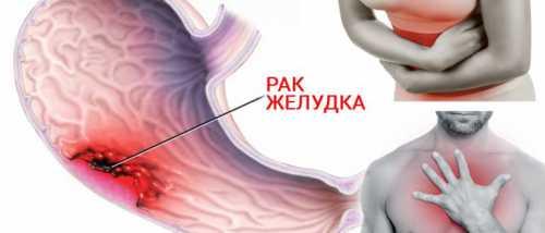 Флавоноиды против рака желудка