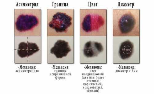 Как отличить родинку от меланомы