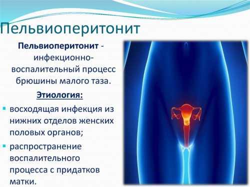 Женские воспалительные заболевания